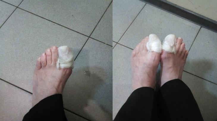 Вылечил грибок ногтей старым способом