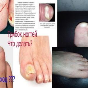 Заболевание грибок ногтей.Как вылечить грибок ногтей обычным уксусом?Проверено на себе
