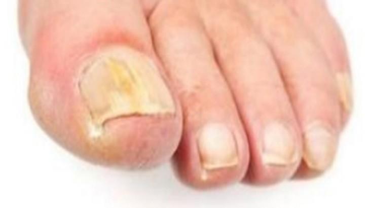 Заражение ногтей грибком